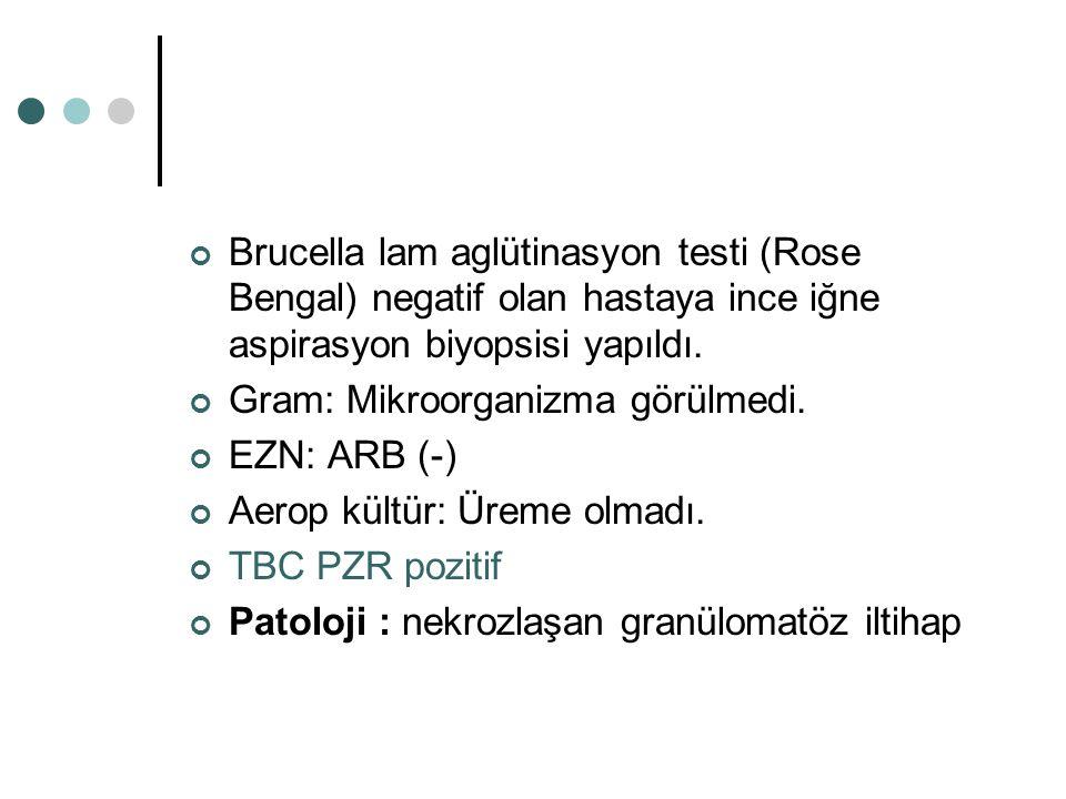 Brucella lam aglütinasyon testi (Rose Bengal) negatif olan hastaya ince iğne aspirasyon biyopsisi yapıldı. Gram: Mikroorganizma görülmedi. EZN: ARB (-