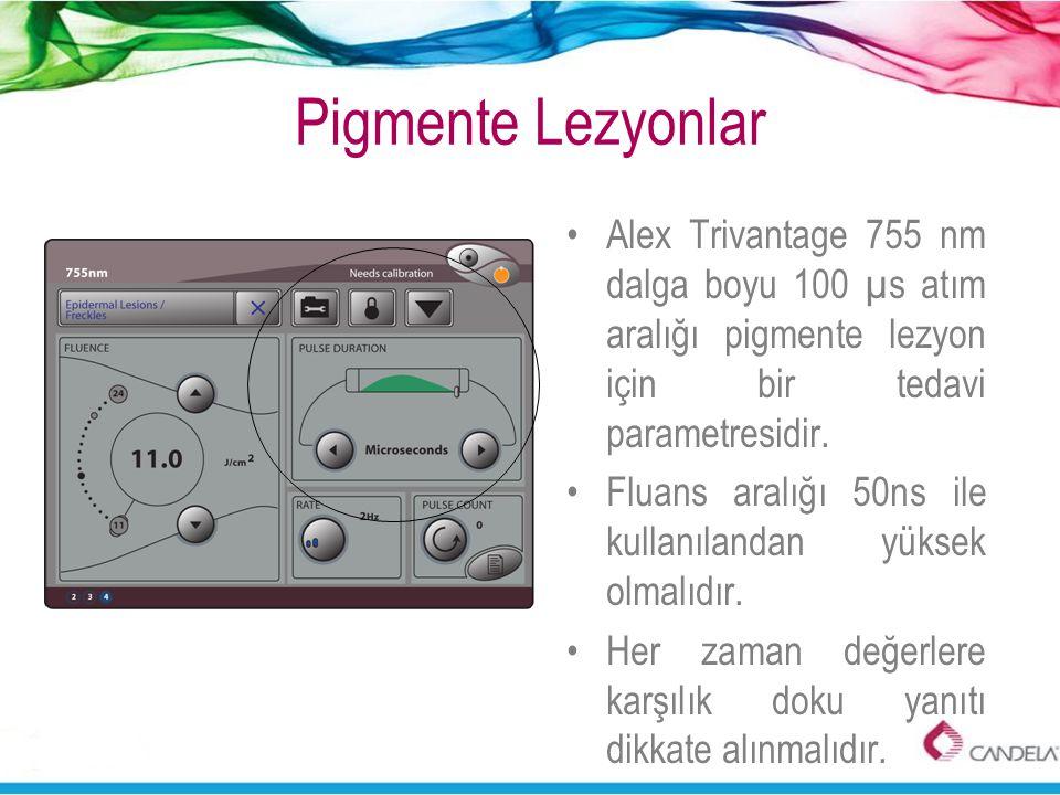 Pigmente Lezyonlar •Alex Trivantage 755 nm dalga boyu 100 µs atım aralığı pigmente lezyon için bir tedavi parametresidir. •Fluans aralığı 50ns ile kul