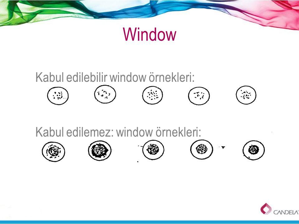 Window Kabul edilebilir window örnekleri: Kabul edilemez: window örnekleri: