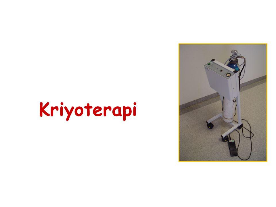 Kriyoterapi