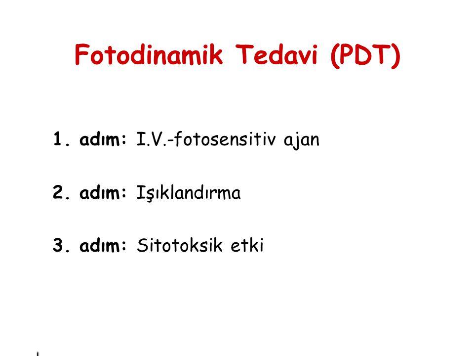 . 1. adım: I.V.-fotosensitiv ajan 2. adım: Işıklandırma 3. adım: Sitotoksik etki Fotodinamik Tedavi (PDT)