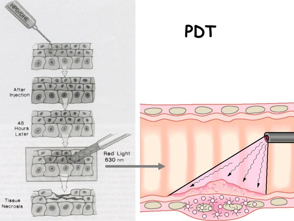 Işık kaynağı ve bronkoskopi •Işığın dalga boyu ile kimyasal uyumu çok önemli •630 nm dalga boyunda kırmızı ışık en uygunu •Işık lazer tarafından üretilir –Argon pump-dye laser •Uygulama –İnterstisyel ışıklandırma –Yüzeyel ışıklandırma –Penetrasyon derinliği: 5-10 mm