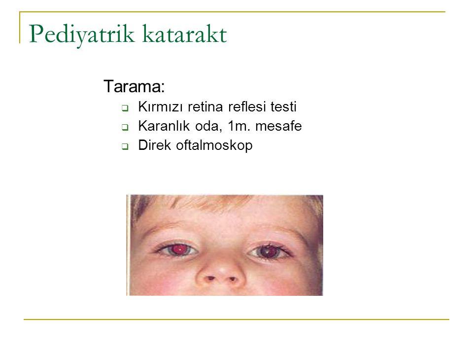 Pediyatrik katarakt Tarama:  Kırmızı retina reflesi testi  Karanlık oda, 1m. mesafe  Direk oftalmoskop