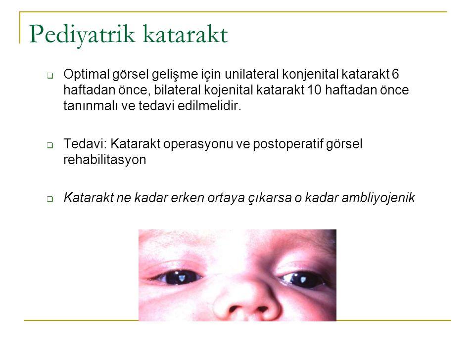 Pediyatrik katarakt  Optimal görsel gelişme için unilateral konjenital katarakt 6 haftadan önce, bilateral kojenital katarakt 10 haftadan önce tanınm