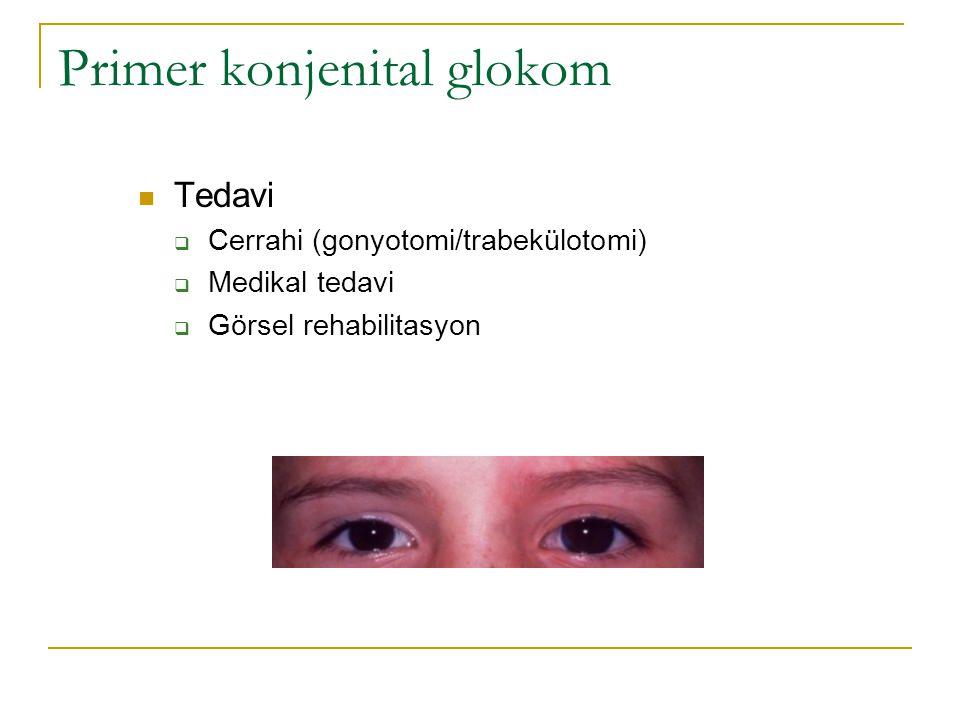 Primer konjenital glokom  Tedavi  Cerrahi (gonyotomi/trabekülotomi)  Medikal tedavi  Görsel rehabilitasyon