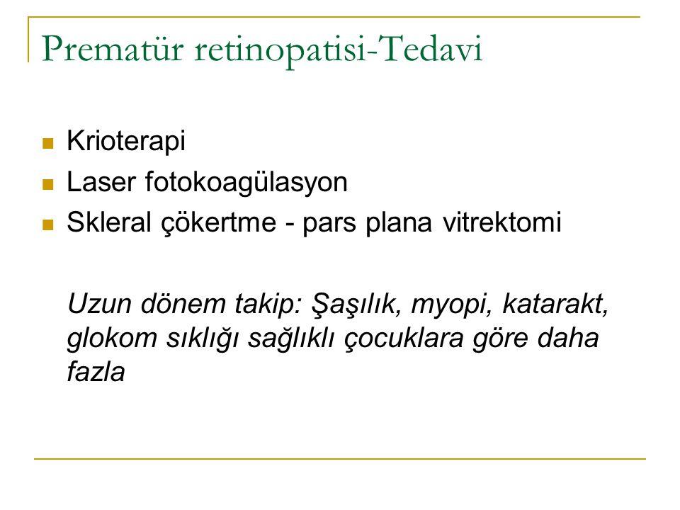 Prematür retinopatisi-Tedavi  Krioterapi  Laser fotokoagülasyon  Skleral çökertme - pars plana vitrektomi Uzun dönem takip: Şaşılık, myopi, katarak