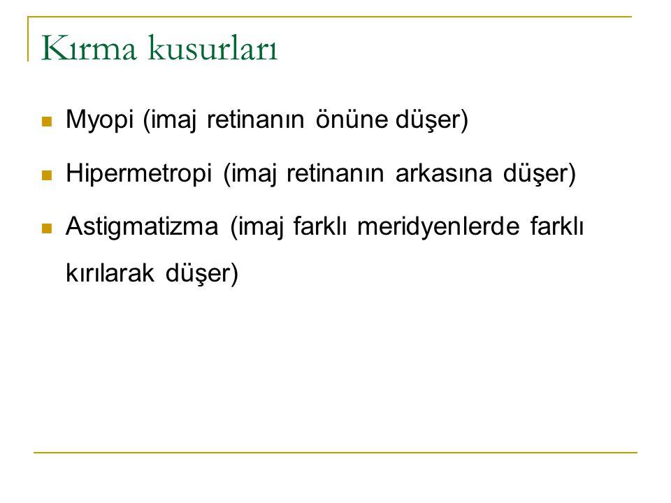 Kırma kusurları  Myopi (imaj retinanın önüne düşer)  Hipermetropi (imaj retinanın arkasına düşer)  Astigmatizma (imaj farklı meridyenlerde farklı k