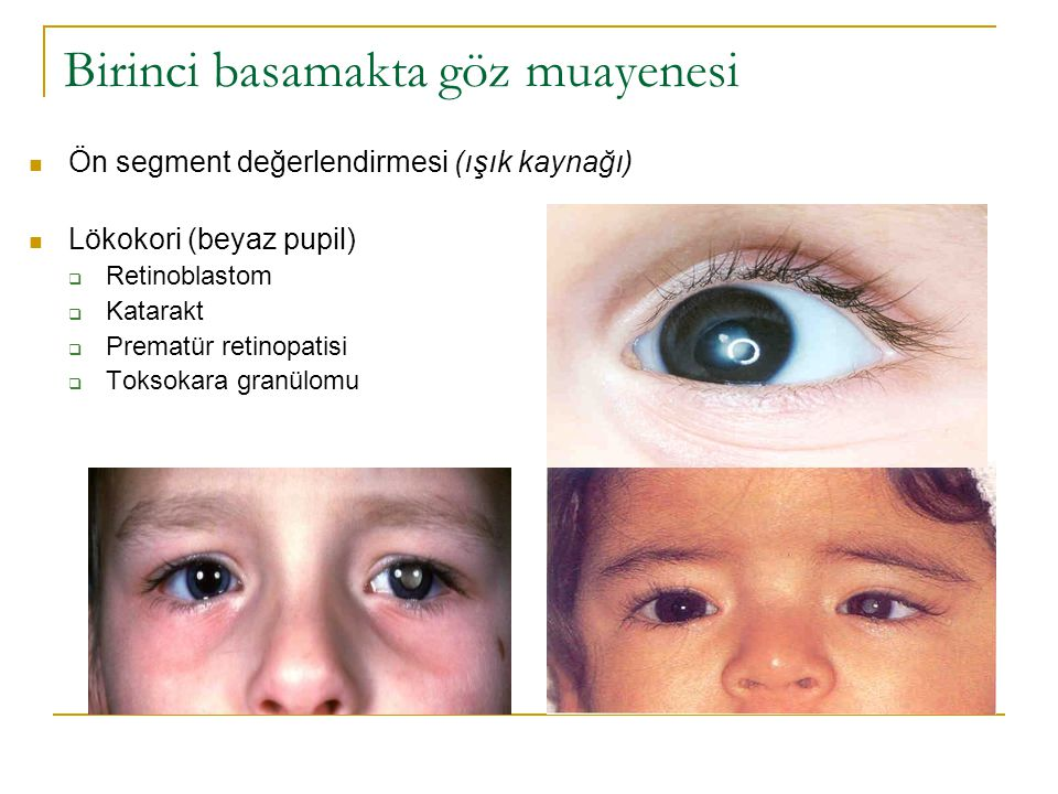 Birinci basamakta göz muayenesi  Ön segment değerlendirmesi (ışık kaynağı)  Lökokori (beyaz pupil)  Retinoblastom  Katarakt  Prematür retinopatis