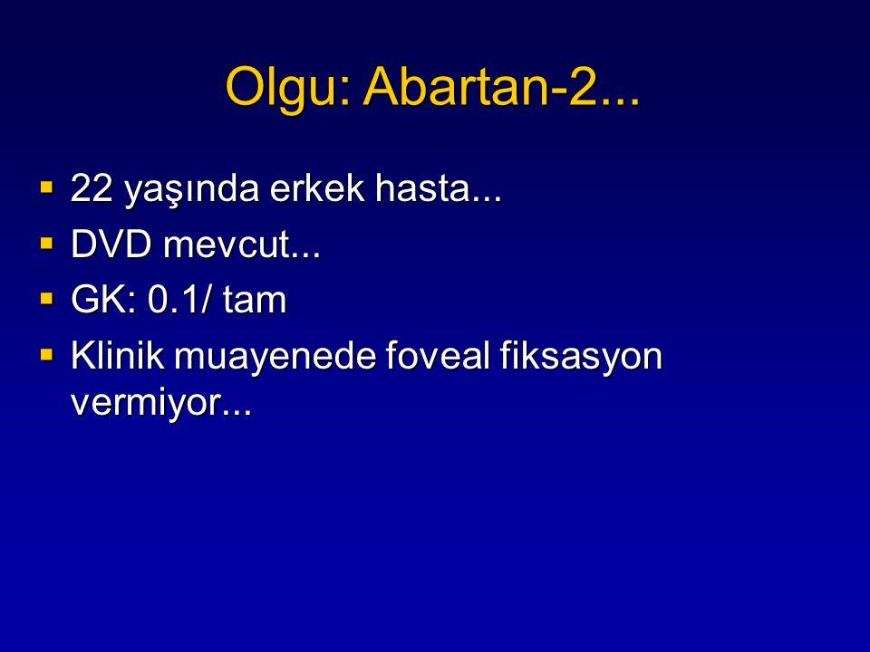  Simülasyon muayene sonucu (–)  Diğer elektrofizyolojik testler (–) Olgu: Abartan-2...
