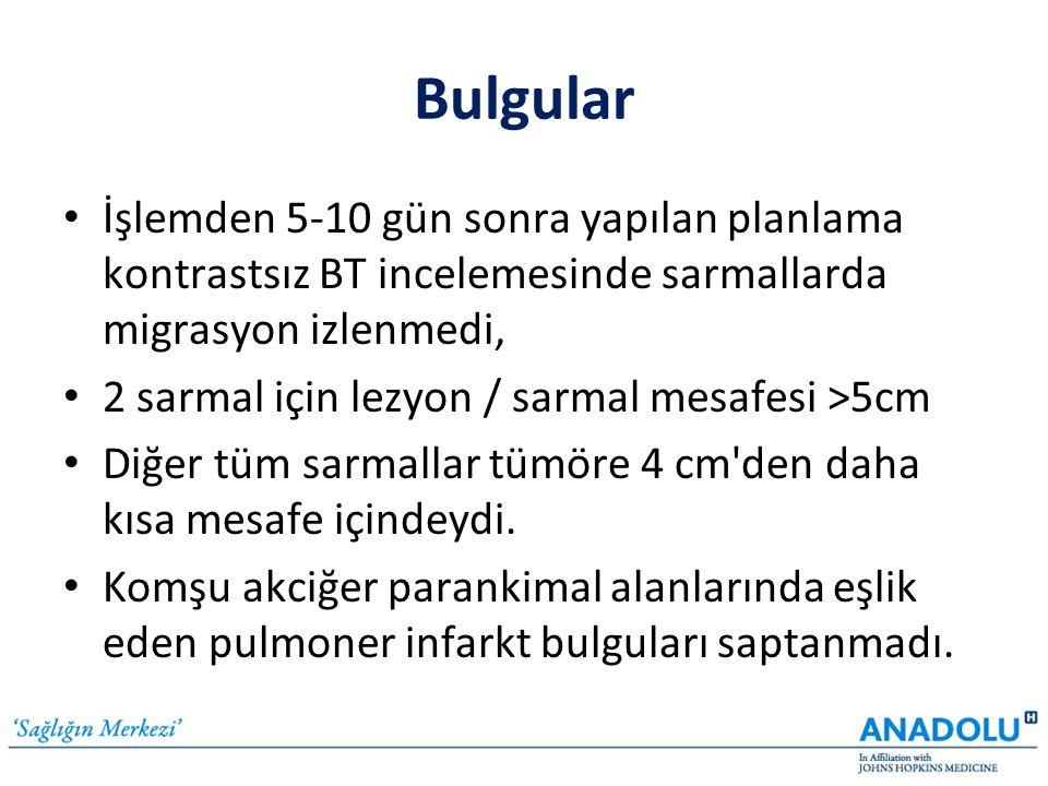 • İşlemden 5-10 gün sonra yapılan planlama kontrastsız BT incelemesinde sarmallarda migrasyon izlenmedi, • 2 sarmal için lezyon / sarmal mesafesi >5cm