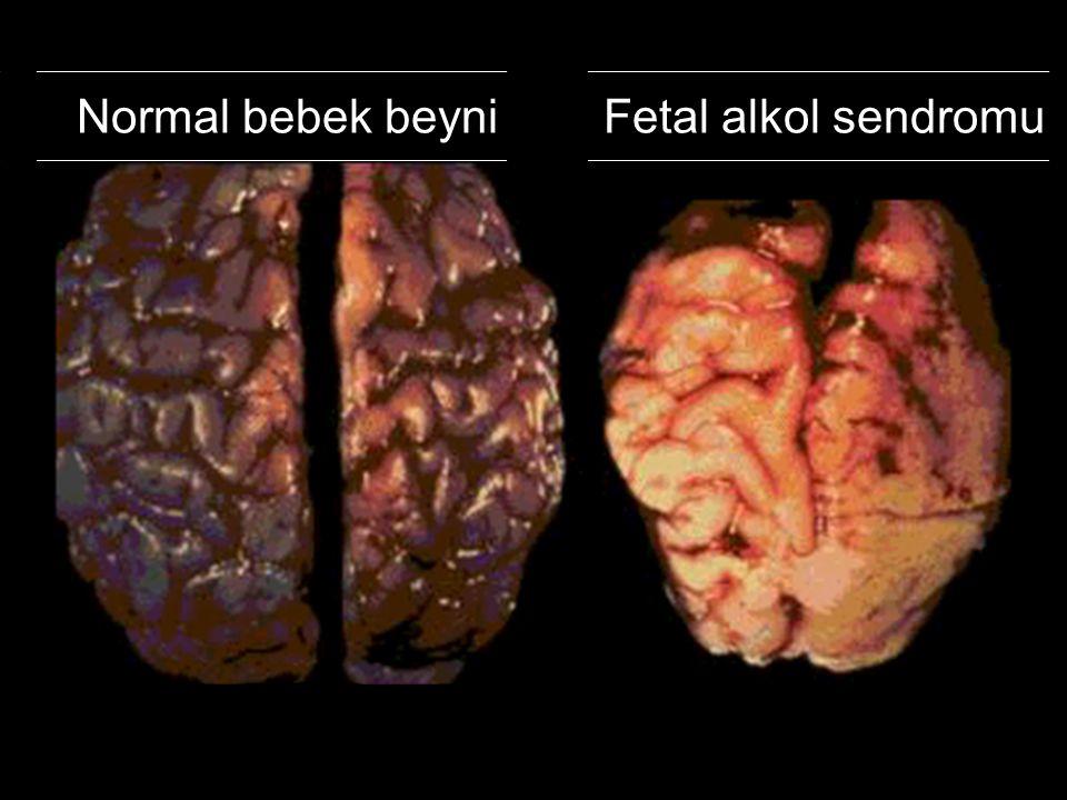 Normal bebek beyni Fetal alkol sendromu