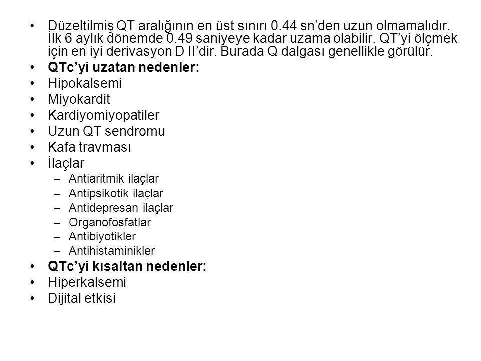 •Düzeltilmiş QT aralığının en üst sınırı 0.44 sn'den uzun olmamalıdır.