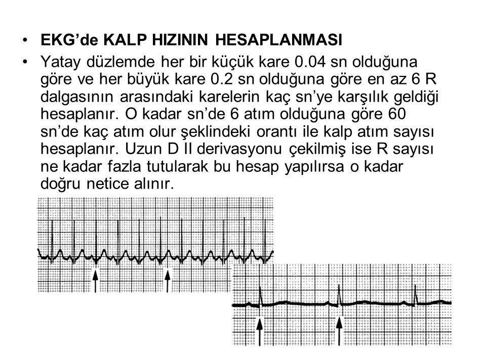 •EKG'de KALP HIZININ HESAPLANMASI •Yatay düzlemde her bir küçük kare 0.04 sn olduğuna göre ve her büyük kare 0.2 sn olduğuna göre en az 6 R dalgasının arasındaki karelerin kaç sn'ye karşılık geldiği hesaplanır.