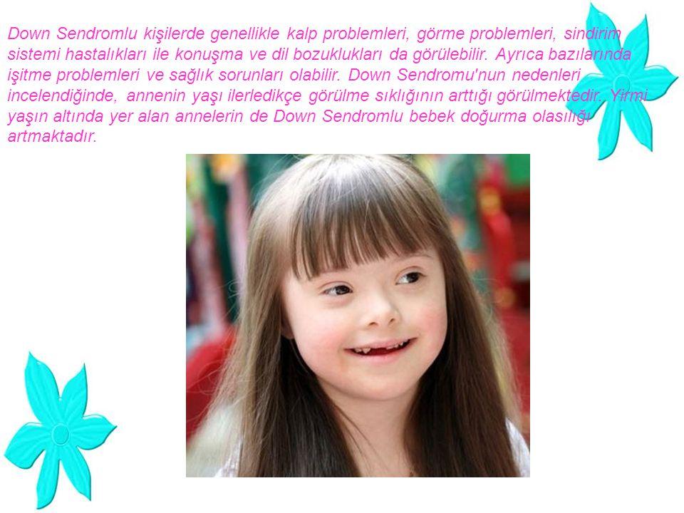 Down Sendromlu kişilerde genellikle kalp problemleri, görme problemleri, sindirim sistemi hastalıkları ile konuşma ve dil bozuklukları da görülebilir.