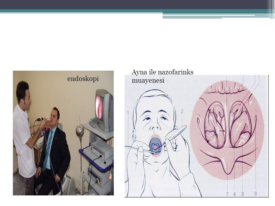 endoskopi Ayna ile nazofarinks muayenesi