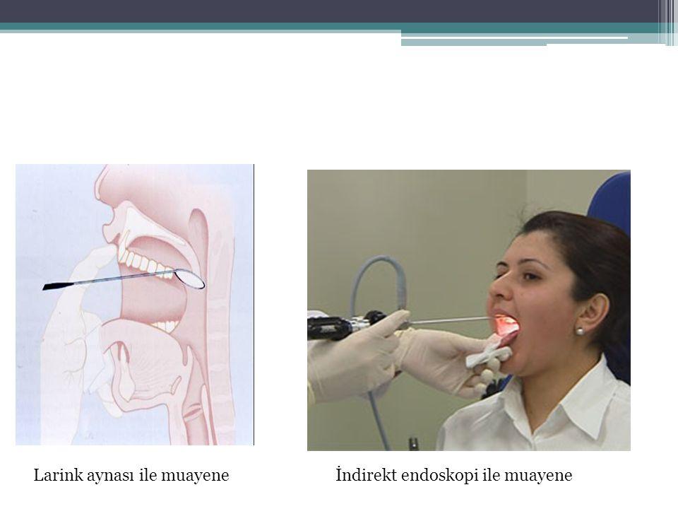 Larink aynası ile muayeneİndirekt endoskopi ile muayene
