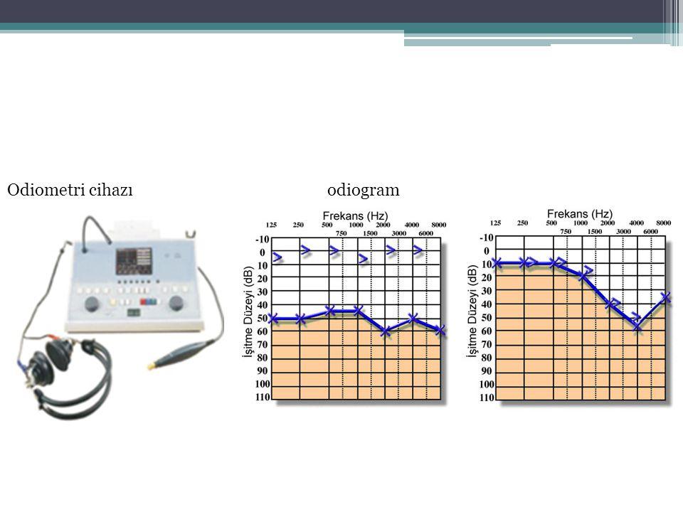Odiometri cihazıodiogram