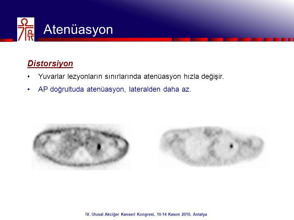 17/32 Atenüasyon Distorsiyon •Yuvarlar lezyonların sınırlarında atenüasyon hızla değişir. •AP doğrultuda atenüasyon, lateralden daha az. IV. Ulusal Ak