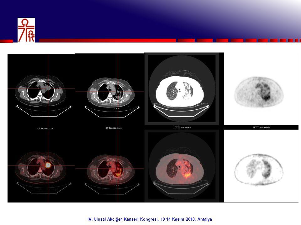 34/32 IV. Ulusal Akciğer Kanseri Kongresi, 10-14 Kasım 2010, Antalya