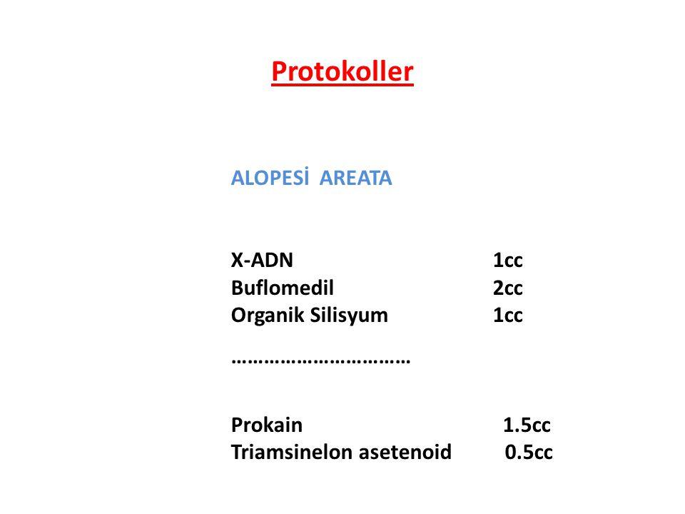ALOPESİ AREATA X-ADN 1cc Buflomedil 2cc Organik Silisyum 1cc …………………………… Prokain 1.5cc Triamsinelon asetenoid0.5cc Protokoller