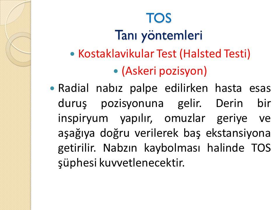 TOS Tanı yöntemleri  Kostaklavikular Test (Halsted Testi)  (Askeri pozisyon)  Radial nabız palpe edilirken hasta esas duruş pozisyonuna gelir.