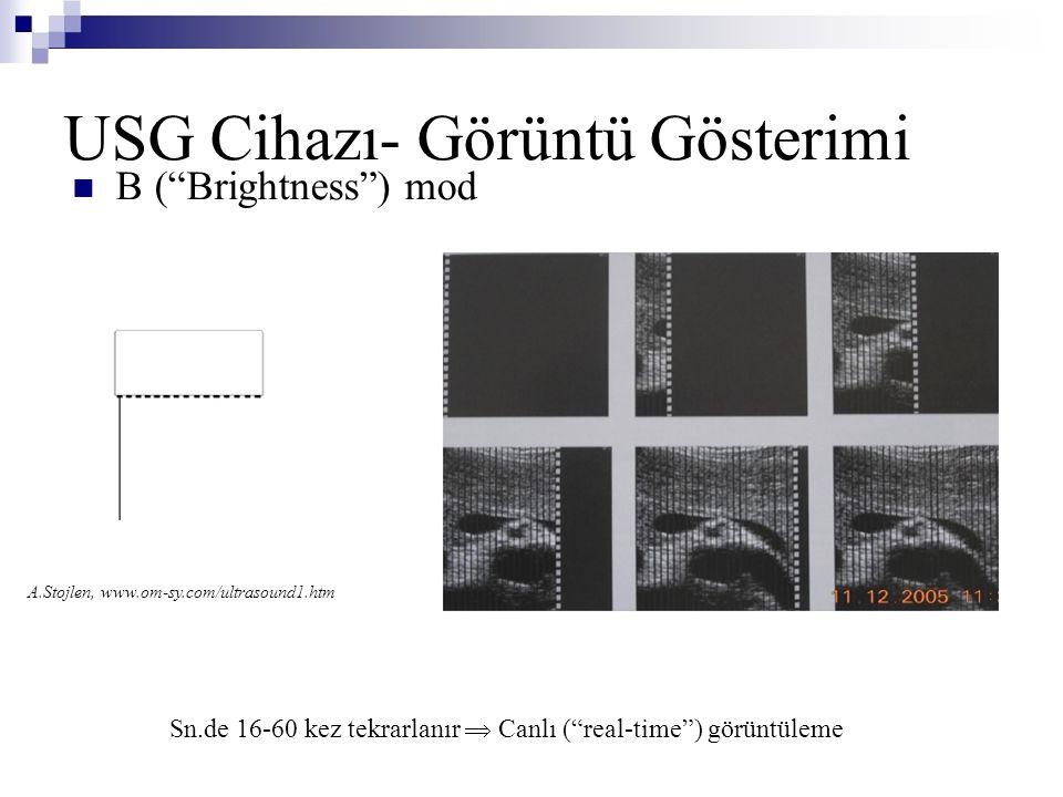 """USG Cihazı- Görüntü Gösterimi  B (""""Brightness"""") mod Sn.de 16-60 kez tekrarlanır  Canlı (""""real-time"""") görüntüleme A.Stojlen, www.om-sy.com/ultrasound"""