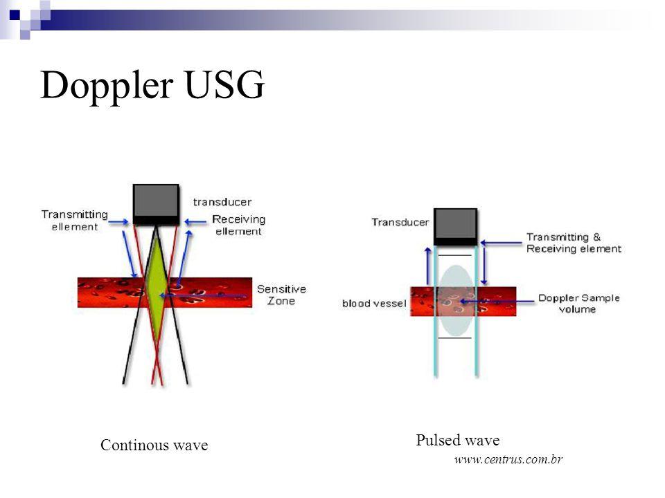 Doppler USG Continous wave Pulsed wave www.centrus.com.br
