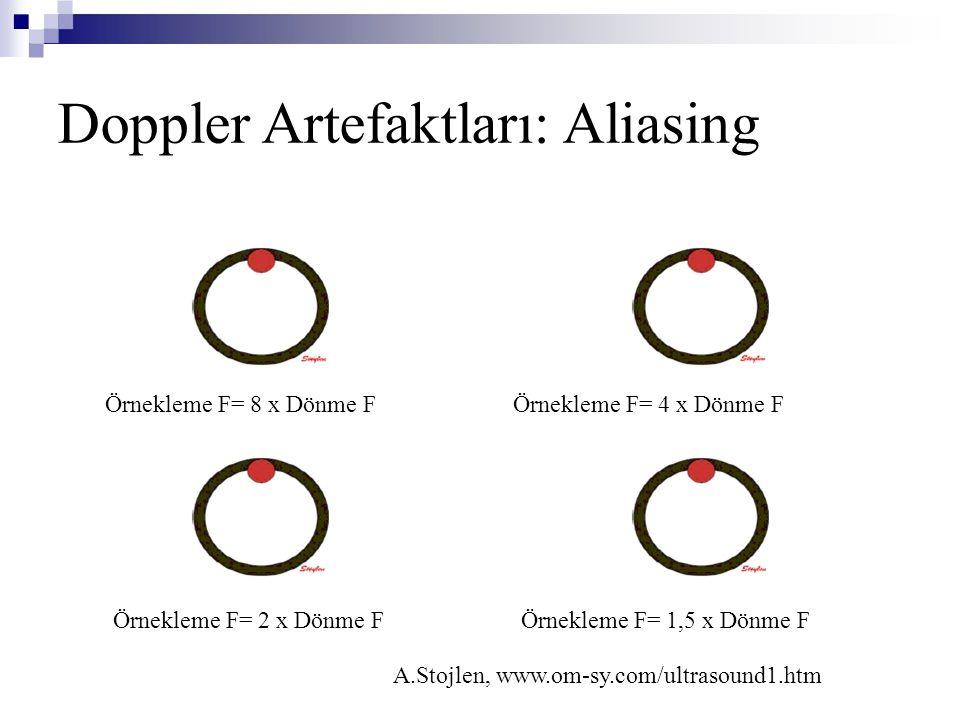 Doppler Artefaktları: Aliasing A.Stojlen, www.om-sy.com/ultrasound1.htm Örnekleme F= 8 x Dönme FÖrnekleme F= 4 x Dönme F Örnekleme F= 2 x Dönme FÖrnek
