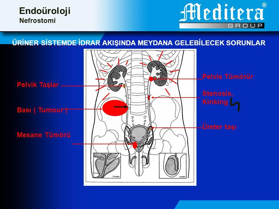 ÜRİNER SİSTEMDE İDRAR AKIŞINDA MEYDANA GELEBİLECEK SORUNLAR Pelvis Tümörür Stenosis, Kinking Üreter taşı Pelvik Taşlar Bası ( Tumour ) Mesane Tümörü Endoüroloji Nefrostomi