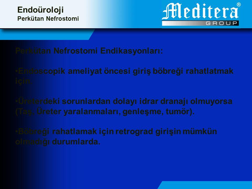 Perkütan Nefrostomi Endikasyonları: •Endoscopik ameliyat öncesi giriş böbreği rahatlatmak için.