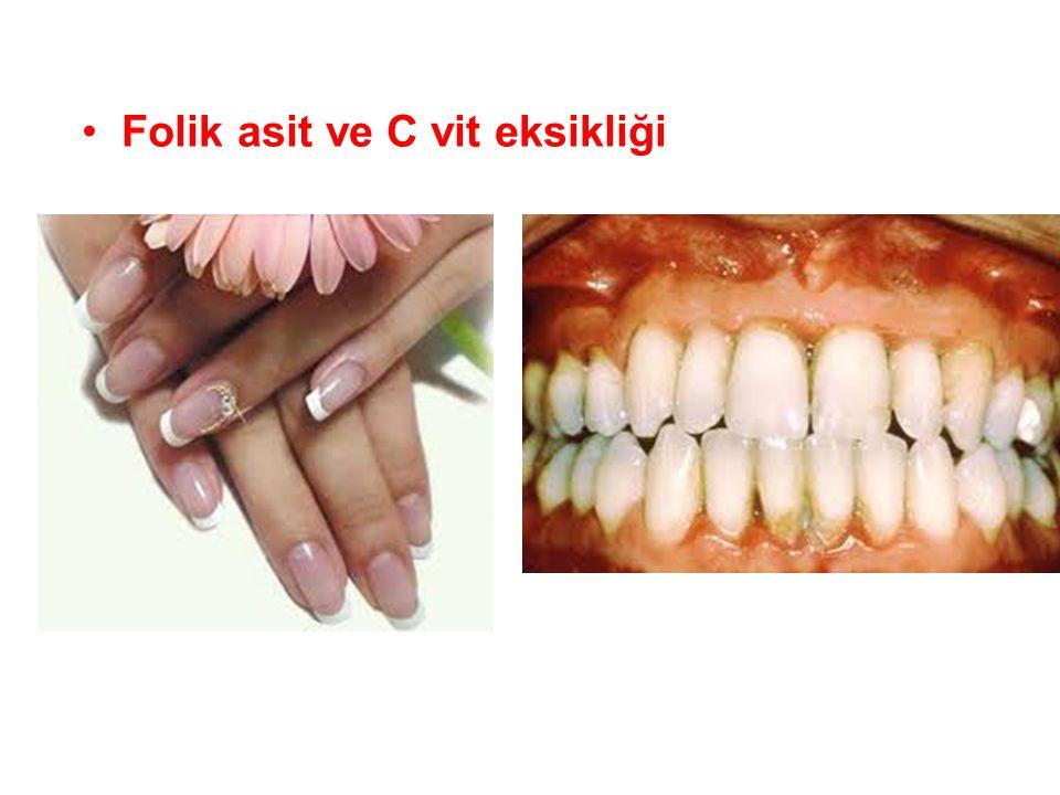 •Folik asit ve C vit eksikliği