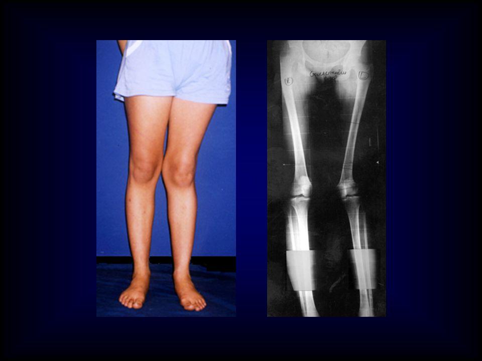 FEMUR FRONTAL PLAN DEFORMİTE PLANLAMASI Mekanik aks metodu, Anatomik aks metodu, Multiapikal deformite planlaması