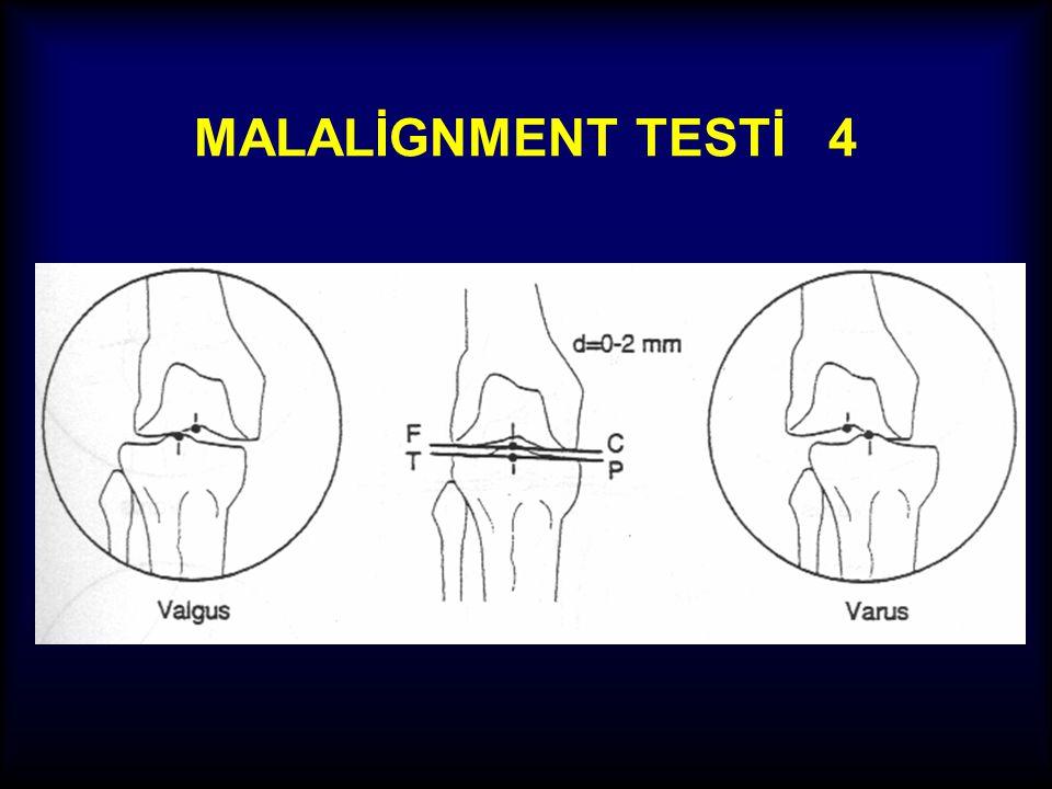 MALALİGNMENT TESTİ 3 JLCA