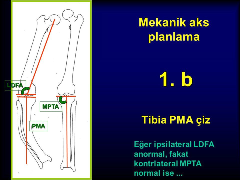 Mekanik aks planlama Tibia PMA çiz 1. a Eğer ipsilateral LDFA normal ise distale uzat LDFA PMA