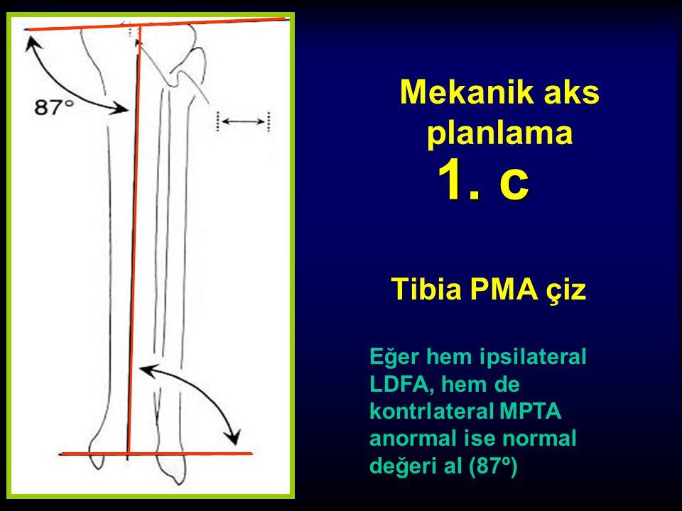 Mekanik aks planlama Tibia PMA çiz 1. b Eğer ipsilateral LDFA anormal, fakat kontrlateral MPTA normal ise... LDFA PMA MPTA
