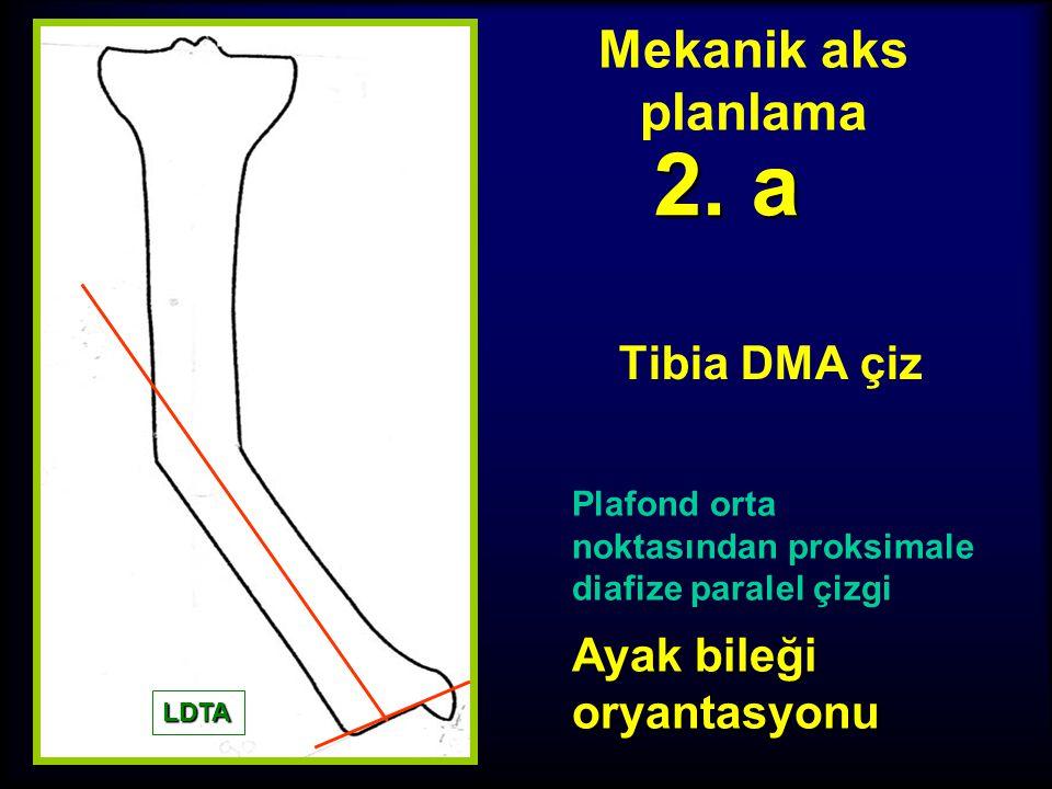 Mekanik aks planlama Tibia PMA çiz 1. c Eğer hem ipsilateral LDFA, hem de kontrlateral MPTA anormal ise normal değeri al (87º)