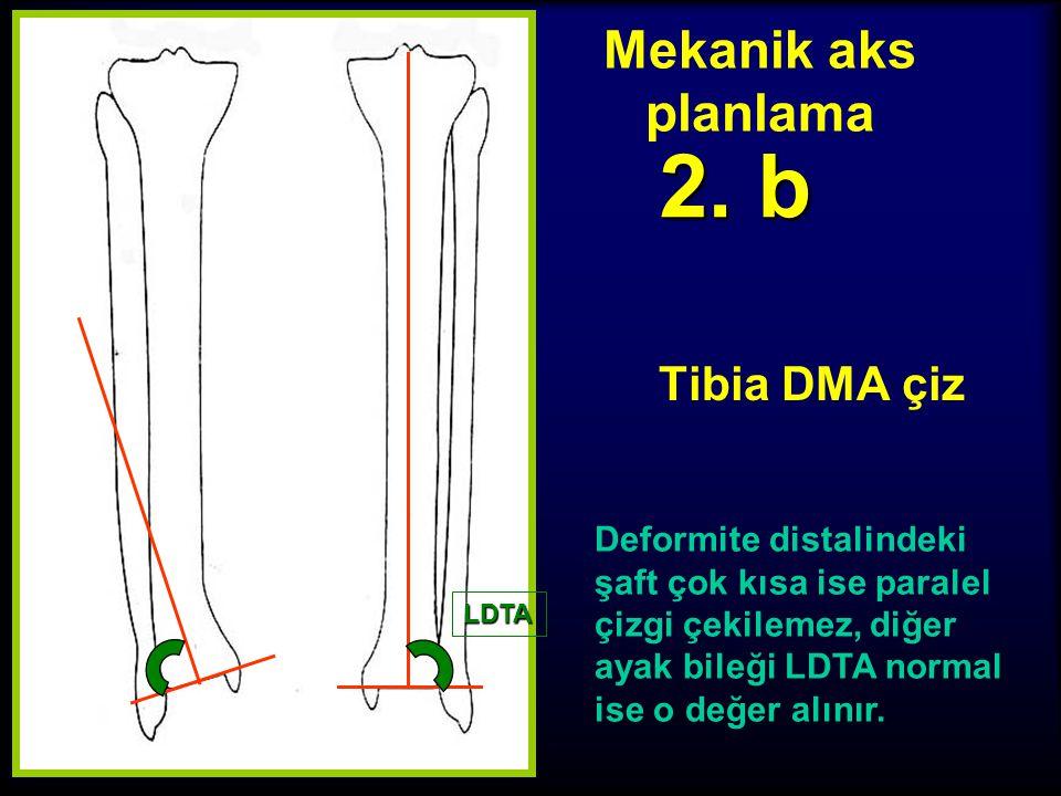 Mekanik aks planlama Tibia DMA çiz 2. a Ayak bileği oryantasyonu LDTA Plafond orta noktasından proksimale diafize paralel çizgi