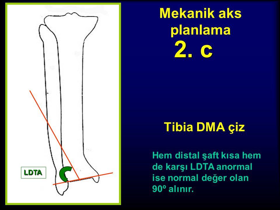 Mekanik aks planlama Tibia DMA çiz 2. b Deformite distalindeki şaft çok kısa ise paralel çizgi çekilemez, diğer ayak bileği LDTA normal ise o değer al