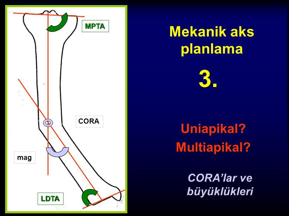 Mekanik aks planlama Tibia DMA çiz 2. c Hem distal şaft kısa hem de karşı LDTA anormal ise normal değer olan 90º alınır. LDTA
