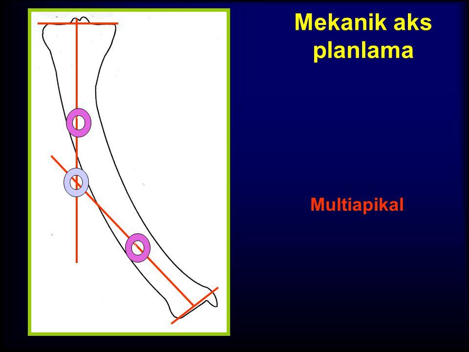 Mekanik aks planlama Multiapikal Eğer CORA; -görünen apeksten farklı yerdeyse, -kemik sınırları dışındaysa, -maloryantasyon varsa deformite multiapika