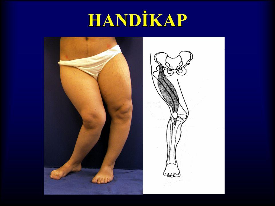 OSTEOTOMİ KURALI - III •Multiapikal deformiteler ile ilgili kural •Bir açısal düzeltmenin yeri ve miktarı, diğer düzeltmenin yerini ve miktarını belir