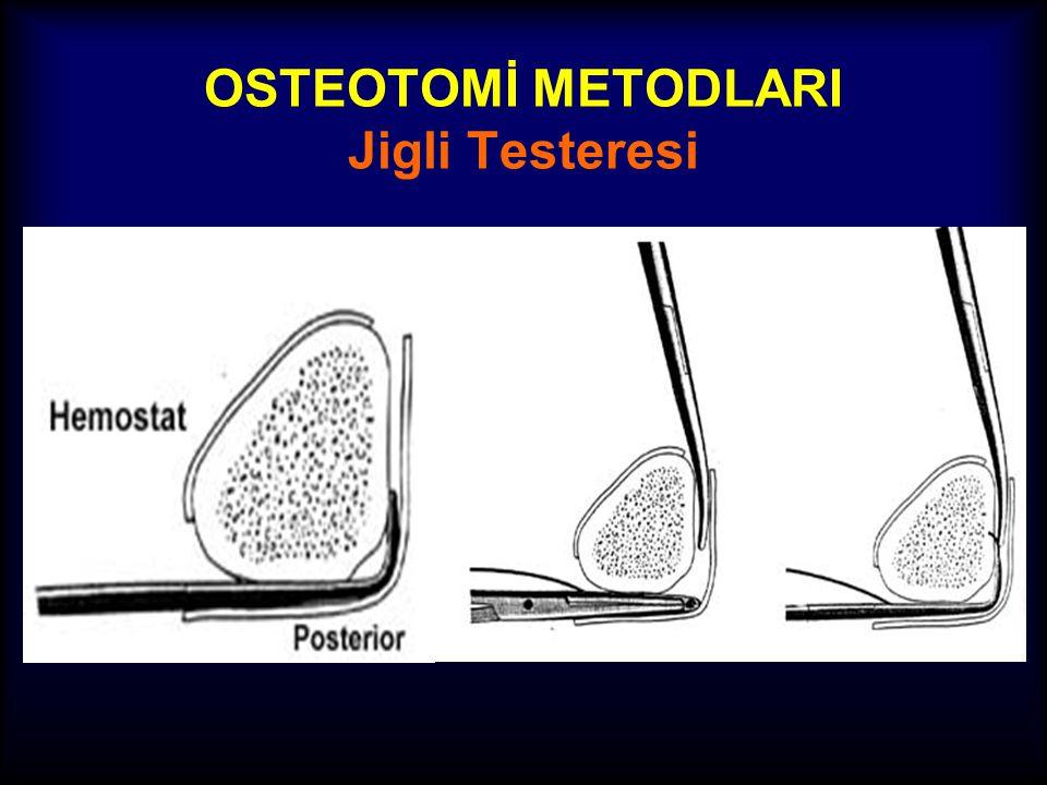 OSTEOTOMİ METODLARI Jigli Testeresi