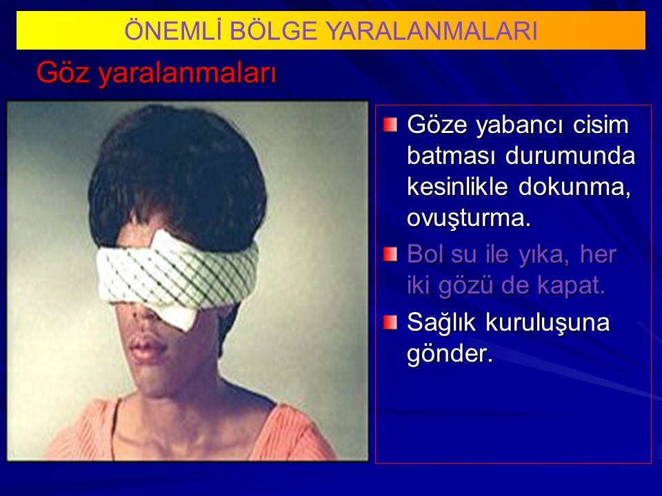 Göz yaralanmaları ÖNEMLİ BÖLGE YARALANMALARI Göze yabancı cisim batması durumunda kesinlikle dokunma, ovuşturma.