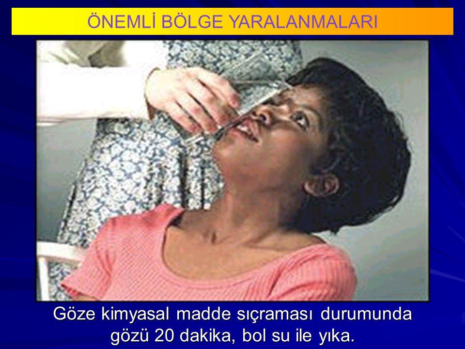 Göze kimyasal madde sıçraması durumunda gözü 20 dakika, bol su ile yıka. ÖNEMLİ BÖLGE YARALANMALARI