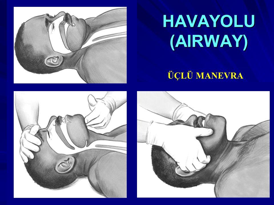 HAVAYOLU (AIRWAY) ÜÇLÜ MANEVRA