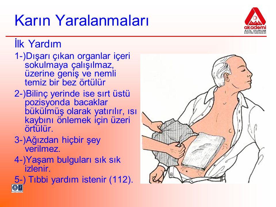 Karın Yaralanmaları İlk Yardım 1-)Dışarı çıkan organlar içeri sokulmaya çalışılmaz, üzerine geniş ve nemli temiz bir bez örtülür 2-)Bilinç yerinde ise