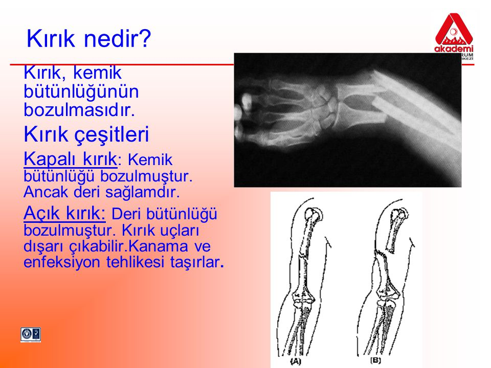 Kırık nedir? Kırık, kemik bütünlüğünün bozulmasıdır. Kırık çeşitleri Kapalı kırık : Kemik bütünlüğü bozulmuştur. Ancak deri sağlamdır. Açık kırık: Der