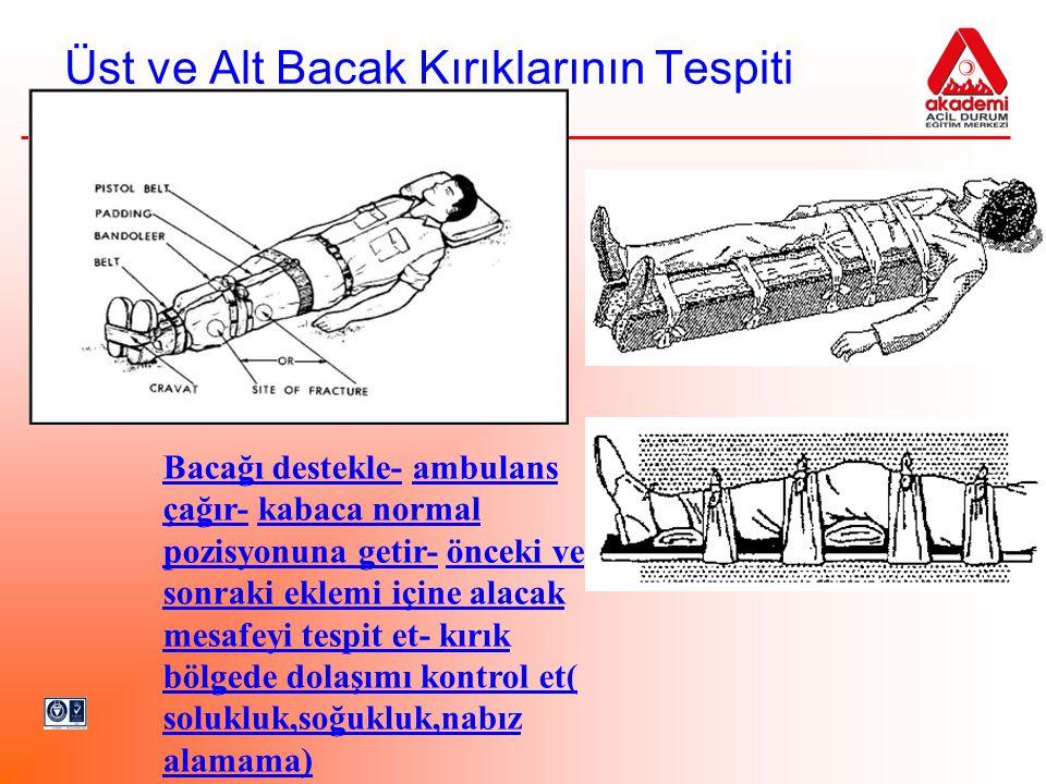 Üst ve Alt Bacak Kırıklarının Tespiti Bacağı destekle- ambulans çağır- kabaca normal pozisyonuna getir- önceki ve sonraki eklemi içine alacak mesafeyi