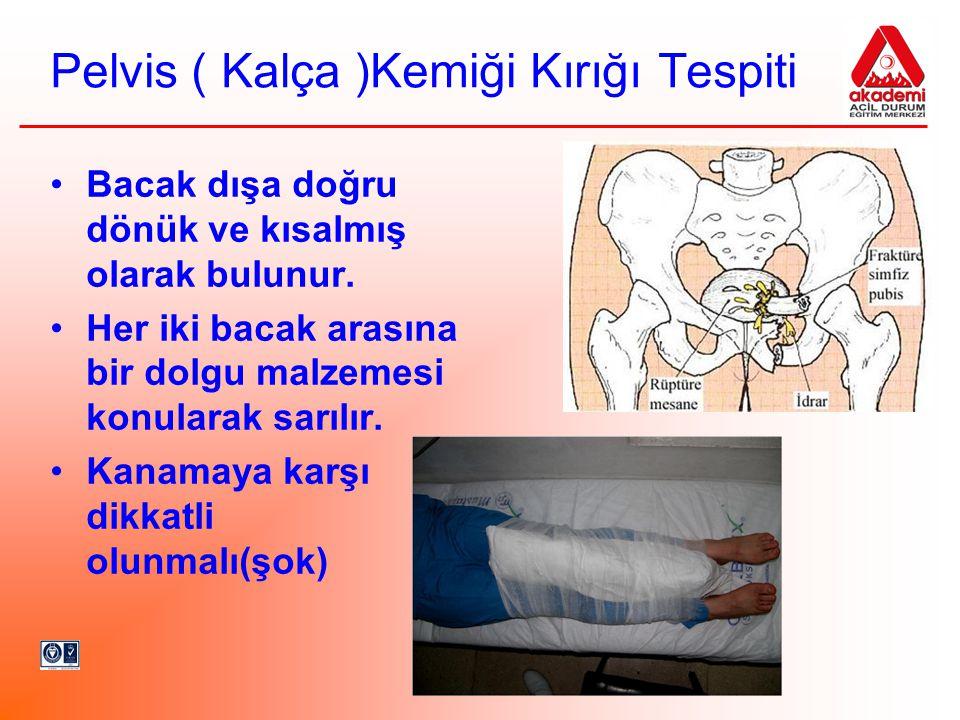 Pelvis ( Kalça )Kemiği Kırığı Tespiti •Bacak dışa doğru dönük ve kısalmış olarak bulunur. •Her iki bacak arasına bir dolgu malzemesi konularak sarılır
