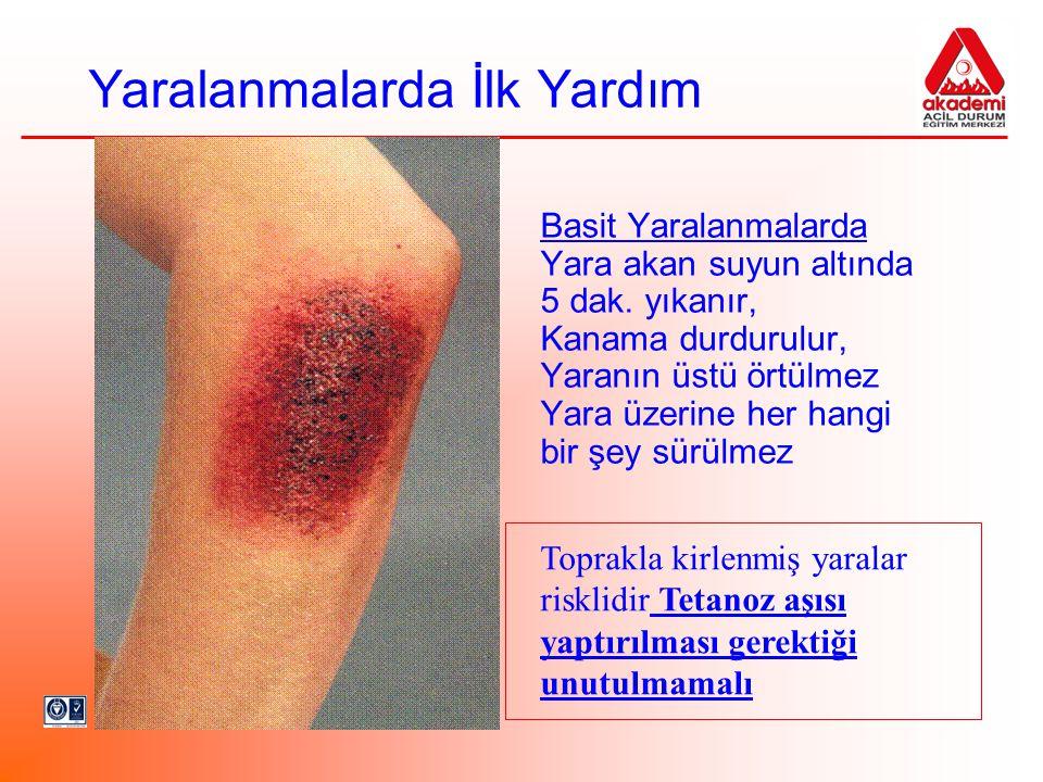 Yaralanmalarda İlk Yardım 2 Ciddi Yaralanmalarda Yara değerlendirilir: Oluş şekli Süresi Yabancı cisim varlığı Kanama vb.